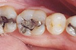 Toxic Mercury Fillings