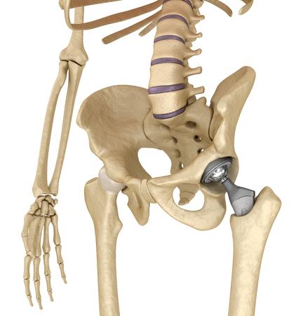toxicity of metal hip implants