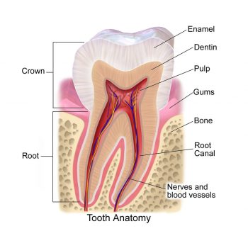 erosion of enamel