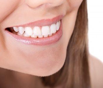 Transform Your Smile with NOVO Smile