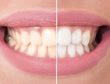 teeth bleaching agents